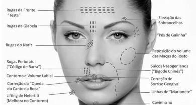 harmonizacao-facial-o-que-precisa-saber