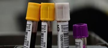 Hemorio inicia testes com plasma sanguíneo no tratamento de covid-19